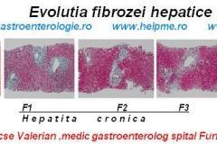 Evolutia-fibrozei-hepatice