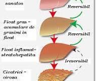 Evolutia-steatozei-hepatice
