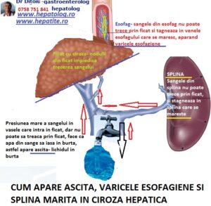 varicoză cu ciroză hepatică)