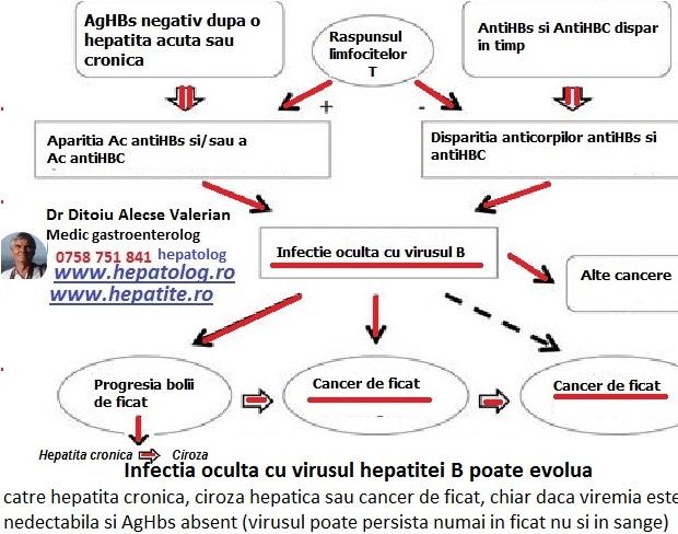 Exista hepatita ascunsa cu virus B care poate evolua catre ciroza hepatica