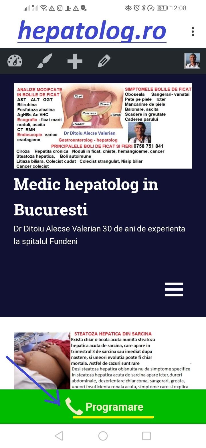 operațiuni de varicoză atunci când hepatita cu tratamentul venelor epidurale