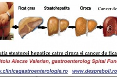 Evolutia-steatozei-hepatice-2