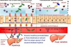 Steatoza-hepatica-nonalcoolica