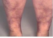 VHB-poliarterita