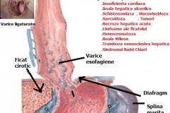 Varice-esofagiene-2