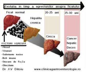 Orice boala de ficat poate ajunge la ciroza hepatica