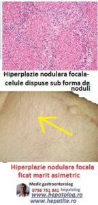 Un nodul hepatic poate fi hiperplazie nodulara focala